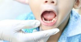 Особенности проведения пластики уздечки у детей: что представляет собой процедура